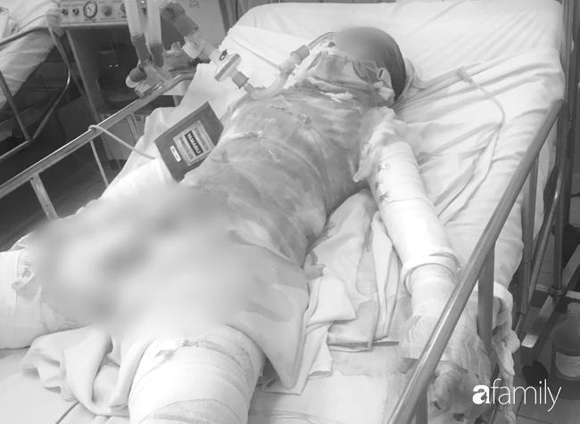 Thương tâm: Thiếu nữ bị bỏng 95%, nghi do bạn trai tưới xăng đốt tại vườn cao su Bình Dương-1