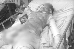 Thương tâm: Thiếu nữ bị bỏng 95%, nghi do bạn trai tưới xăng đốt tại vườn cao su Bình Dương