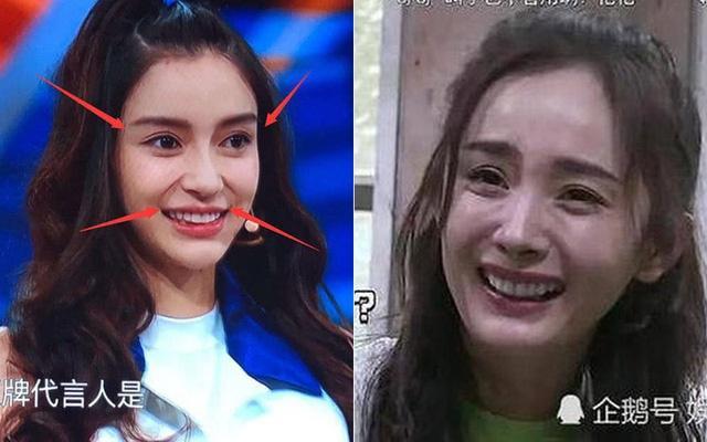 Mặt trái về phẫu thuật thẩm mỹ ở showbiz Trung Quốc-1