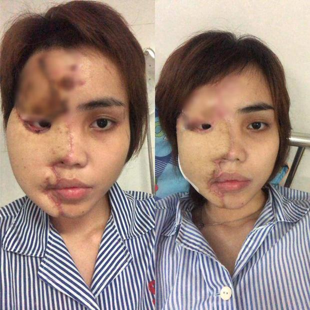 Cô gái bị chồng sắp cưới tạt axit lần đầu lộ diện cả khuôn mặt, tiết lộ 16 lần phẫu thuật đau đớn-2