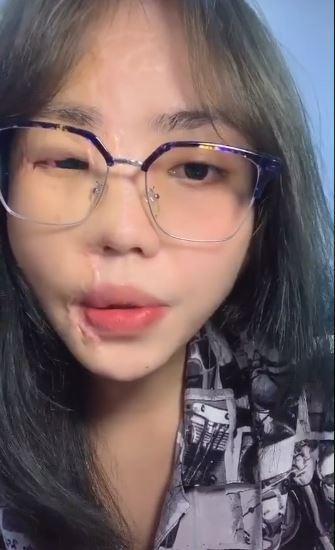 Cô gái bị chồng sắp cưới tạt axit lần đầu lộ diện cả khuôn mặt, tiết lộ 16 lần phẫu thuật đau đớn-3