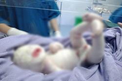 HI HỮU: Bé sơ sinh ở Quảng Ninh mắc bệnh lạ, toàn thân khô cứng như sa mạc