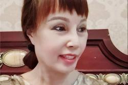 Cô dâu 63 tuổi tiếp tục lộ miệng méo đáng sợ dù nhập viện điều trị biến chứng thẩm mỹ
