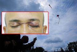 Người đàn ông suýt mù mắt khi va phải dây diều thả trên đường ở Quảng Ninh
