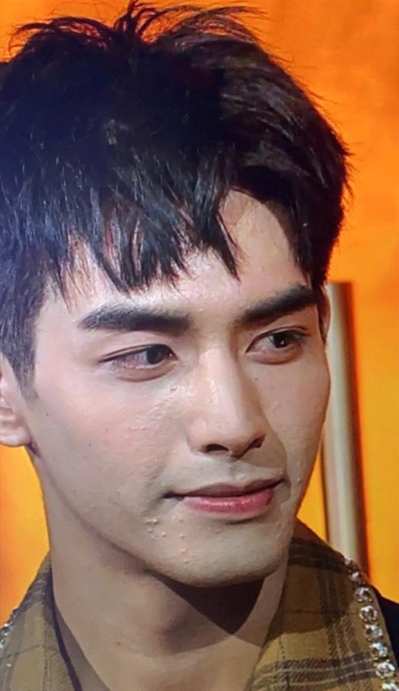 Sáng nhất Kim Ưng đêm nay là làn da sần sùi mụn đến gai người của Tống Uy Long-1