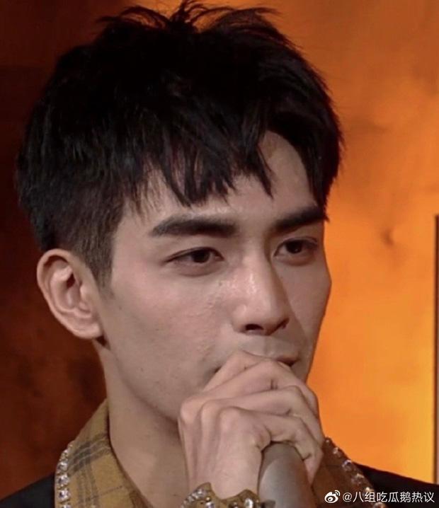 Sáng nhất Kim Ưng đêm nay là làn da sần sùi mụn đến gai người của Tống Uy Long-4