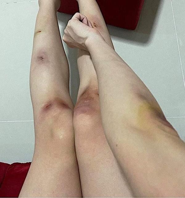 Sở hữu đôi chân ngọc ngà, Hari Won và Thiều Bảo Trâm lộ vết thương chi chít-10
