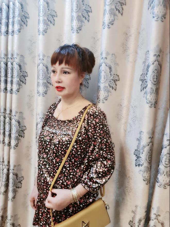Bất ngờ gương mặt trẻ đẹp của cô dâu Cao Bằng sau gần 4 tháng dao kéo-5