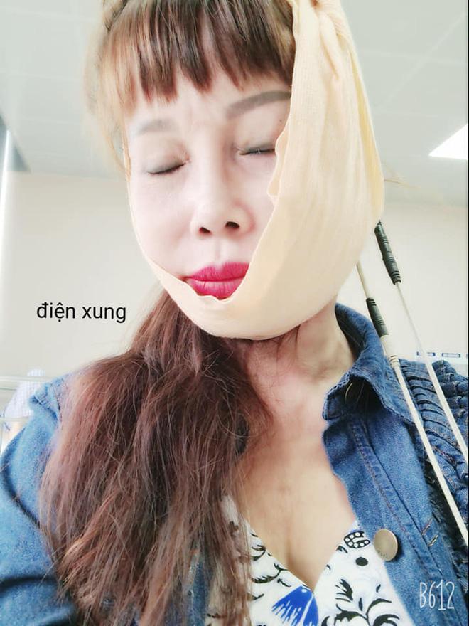 Bất ngờ gương mặt trẻ đẹp của cô dâu Cao Bằng sau gần 4 tháng dao kéo-3