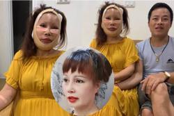 Bất ngờ gương mặt trẻ đẹp của cô dâu Cao Bằng sau gần 4 tháng dao kéo