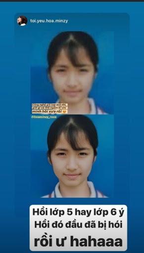 Hòa Minzy lộ mảng da đầu hói, HH Ngọc Hân bật mí bí quyết giúp tóc dày đen bóng đến từ dân gian-1