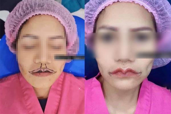 Hết hồn đôi môi đại bàng tung cánh của cô gái trẻ sau phẫu thuật-3
