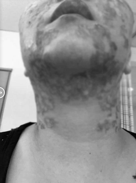RÙNG MÌNH: Mặt rộp như bánh đa sau khi căng da bằng phương pháp Hifu-4