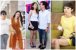 Riêng gì Thủy Tiên bị ghẻ vì ngâm nước, Hương Giang cũng có chân 'hoa gấm'
