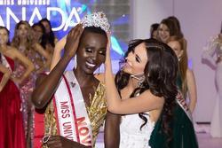Hoa hậu Hoàn vũ Canada từng nhịn ăn 21 ngày