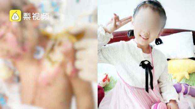 Bé gái 6 tuổi bị mẹ ruột và nhân tình hành hung, lấy kìm bẻ răng rồi bắt nuốt-1