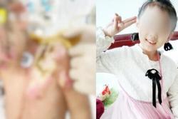 Bé gái 6 tuổi bị mẹ ruột và nhân tình hành hung, lấy kìm bẻ răng rồi bắt nuốt