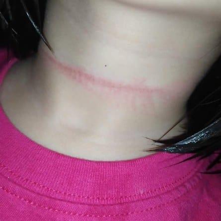 Bé gái 4 tuổi suýt mất mạng vì treo cổ tự tử theo thử thách trên Tiktok-1