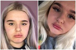 Nữ sinh đau đớn khi bơm môi giống Kylie Jenner