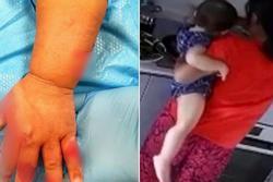 Giúp việc tàn bạo nhúng tay bé 16 tháng vào nồi nước sôi chỉ vì khóc nhiều
