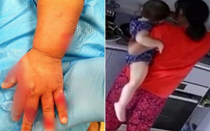 Giúp việc tàn bạo nhúng tay bé 16 tháng vào nồi nước sôi chỉ vì khóc nhiều-1