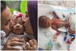 Bé gái sinh non nặng vỏn vẹn bằng quả cà tím giờ ra sao sau 7 tháng chào đời