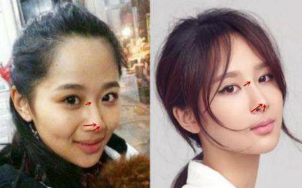 Dương Tử bị nghi ngờ thẩm mỹ, gương mặt hao hao Yoon Eun Hye-6