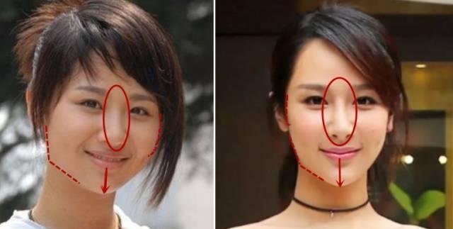 Dương Tử bị nghi ngờ thẩm mỹ, gương mặt hao hao Yoon Eun Hye-8
