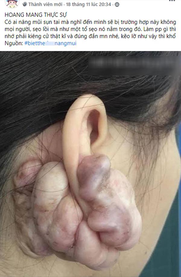 Hình ảnh sẹo đùn kín tai do nâng mũi bằng sụn tai gây sốc trên MXH và sự thật-1