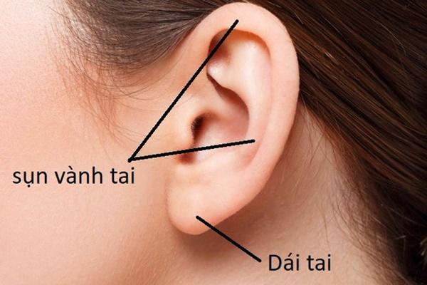 Hình ảnh sẹo đùn kín tai do nâng mũi bằng sụn tai gây sốc trên MXH và sự thật-4