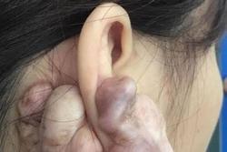 Hình ảnh sẹo đùn kín tai 'do nâng mũi bằng sụn tai' gây sốc trên MXH và sự thật