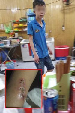 Chủ quán bánh xèo ở Bắc Ninh khai gì với công an sau khi 'tra tấn' 2 thanh niên giúp việc?
