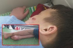 Nạn nhân 15 tuổi bị 'tra tấn' kể nhiều lần ăn đòn bằng chày đập đá, 'cạo vảy cá' ở lưng