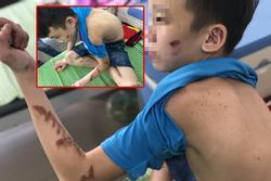 Trẻ 15 tuổi bị tra tấn ở Bắc Ninh: Anh trai nạn nhân 'bẻ lái' khi nói về nữ chủ quán