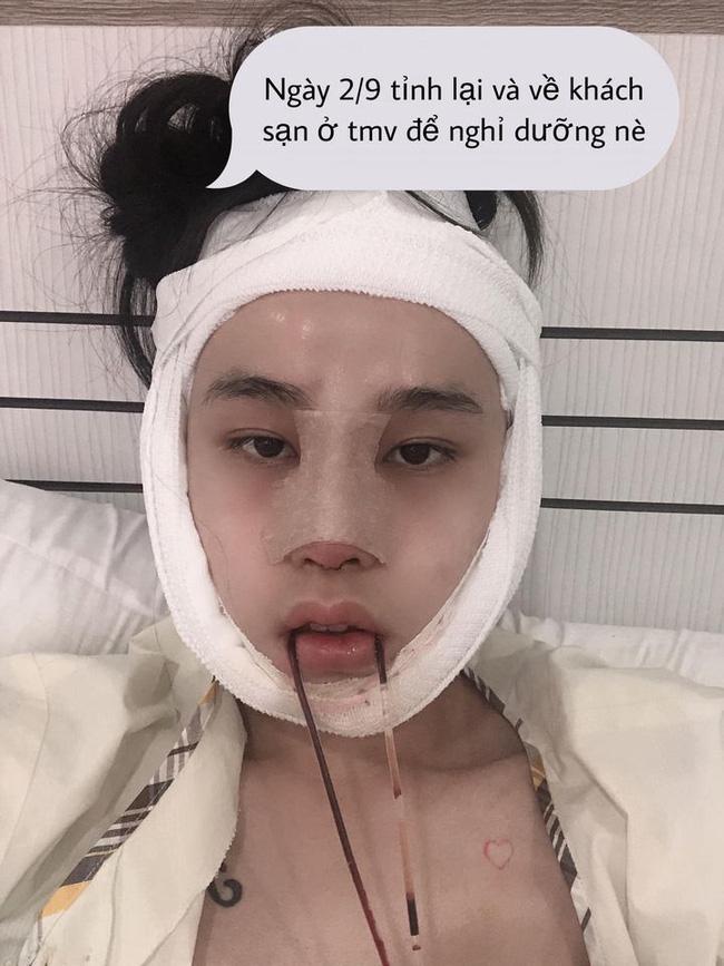 Thí sinh Hoa hậu chuyển giới kể lại hành trình dao kéo lột xác không tưởng-3