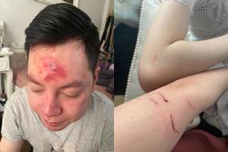 Hà Nội: Cãi vã vì mời rượu mà khách không uống, nhân viên quán bar xông vào đánh khách rách trán