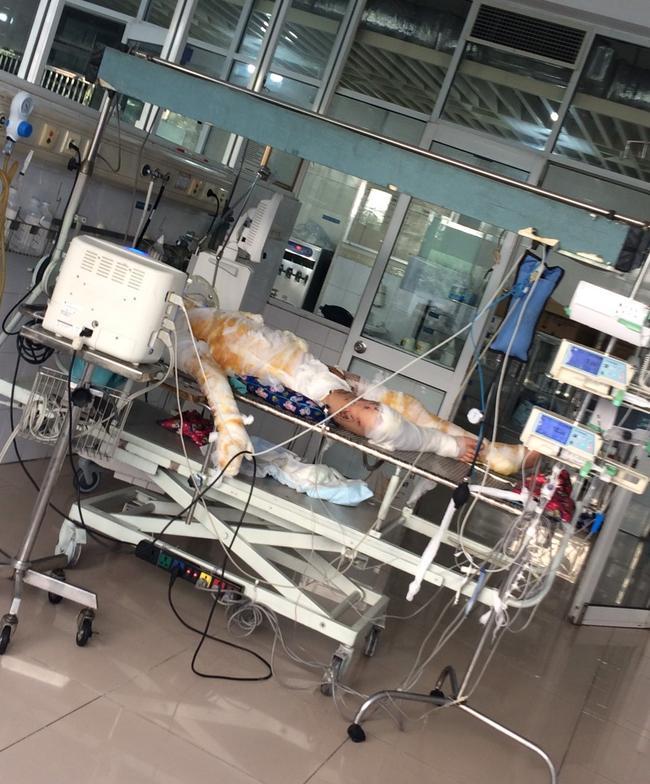 Xót xa người đàn ông bị bỏng nặng vì nổ khí gas, vợ bỏ đi theo nhân tình để lại 2 con nhỏ-1