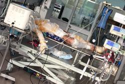 Xót xa người đàn ông bị bỏng nặng vì nổ khí gas, vợ bỏ đi theo nhân tình để lại 2 con nhỏ