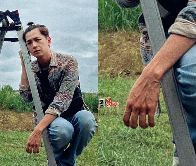 Dân mạng hốt hoảng khi nhìn bàn tay Ngô Kiến Huy-2
