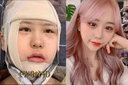 Youtuber Hàn 'lột xác' như hot girl sau nhiều lần phẫu thuật thẩm mỹ