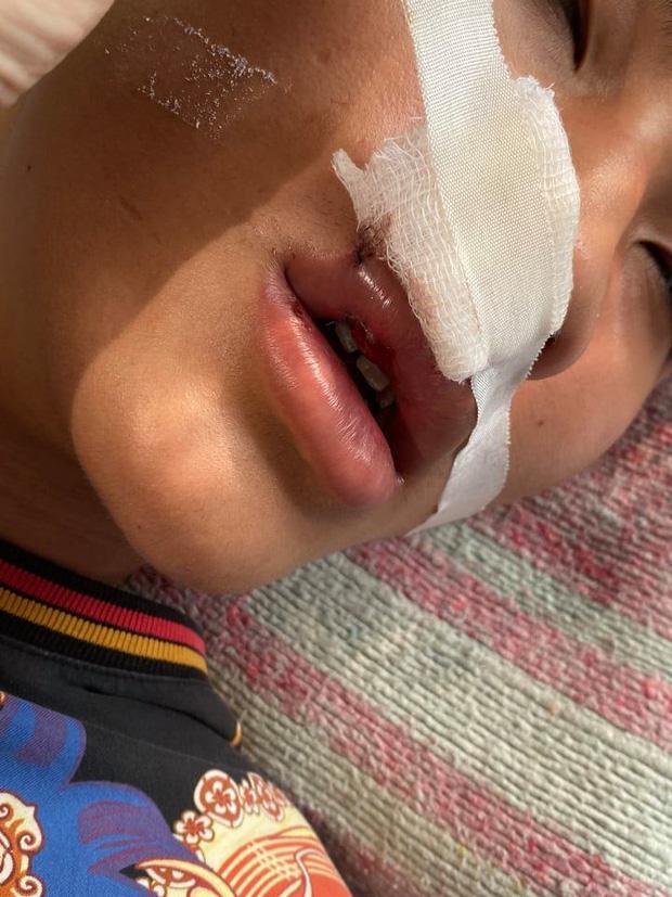 Nam sinh lớp 11 bị đánh hội đồng gãy răng cửa, rách miệng phải khâu nhiều mũi-2