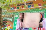 Hà Nội: Bé mầm non 4 tuổi nhập viện khẩn cấp sau giờ học ngoài trời ở trường-2