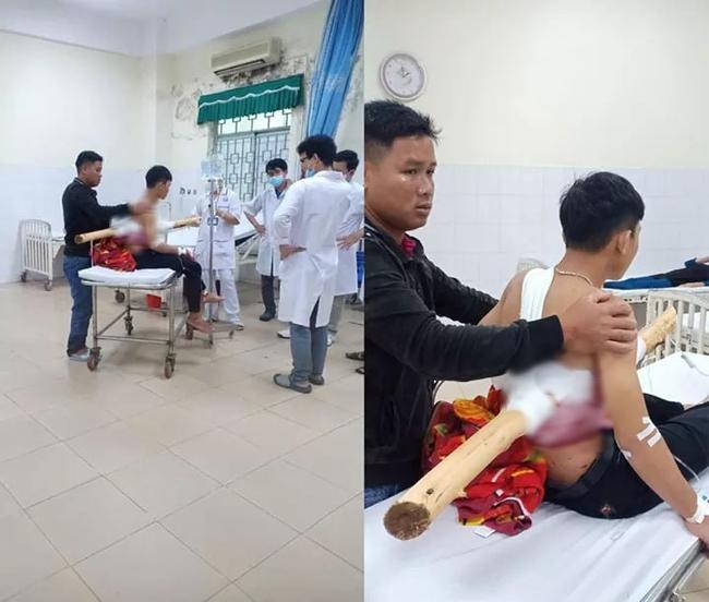 Kinh hoàng: Nam sinh bị khúc gỗ dài 2m đâm xuyên người sau va chạm với xe chở keo-1
