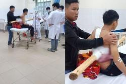 Kinh hoàng: Nam sinh bị khúc gỗ dài 2m đâm xuyên người sau va chạm với xe chở keo