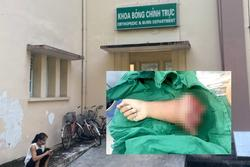 Kinh hoàng: 'Xế nhí' 8 tuổi ở Long An chạy xe máy bị tai nạn đứt lìa cánh tay