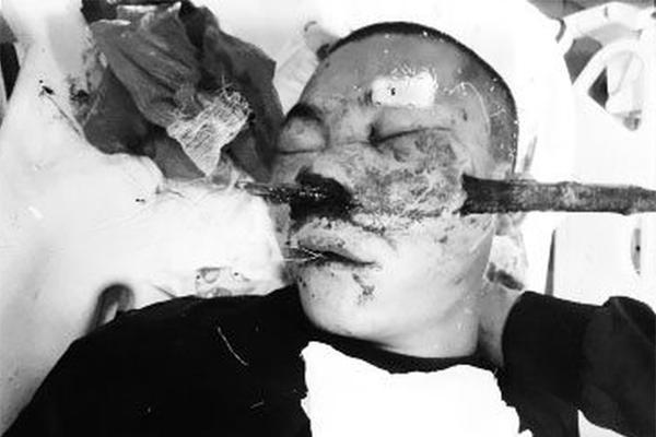 Cứu nam thanh niên bị cành cây đâm xuyên vùng mũi-1