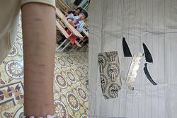 CẢNH BÁO: Nhiều học sinh dùng dao lam tự rạch cơ thể, coi đó là thú vui xả stress
