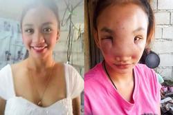 Nặn mụn mũi, cô gái trẻ mắc bệnh lạ đến người thân cũng nhận không ra