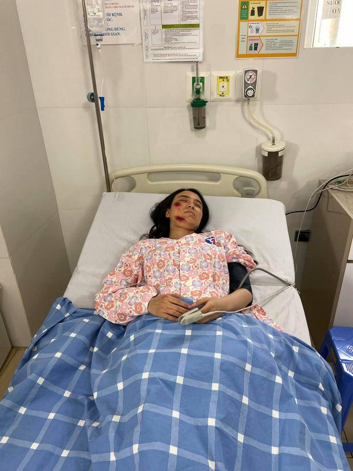 Hé lộ thêm loạt ảnh Linh Miu bị đánh bầm dập, nằm bất động trên giường bệnh-1