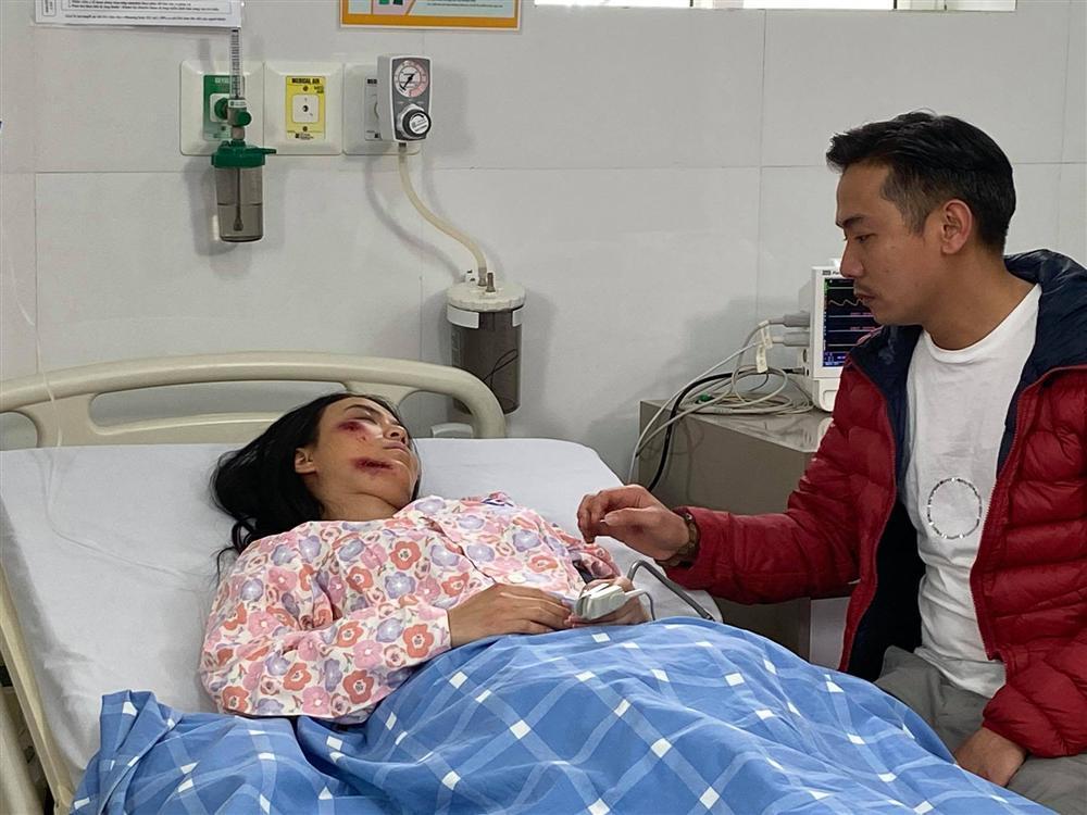 Hé lộ thêm loạt ảnh Linh Miu bị đánh bầm dập, nằm bất động trên giường bệnh-2